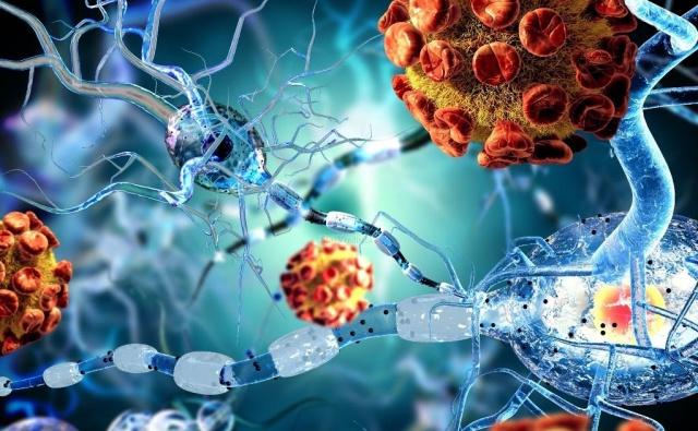 Первичные иммунодефицитные заболевания